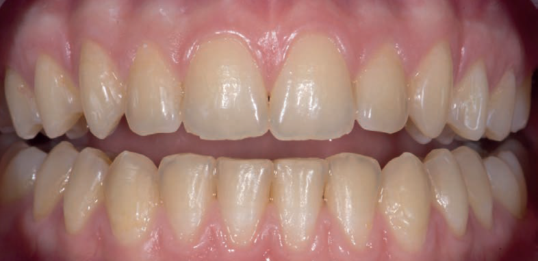 Professional Teeth Whitening - Before Treatment