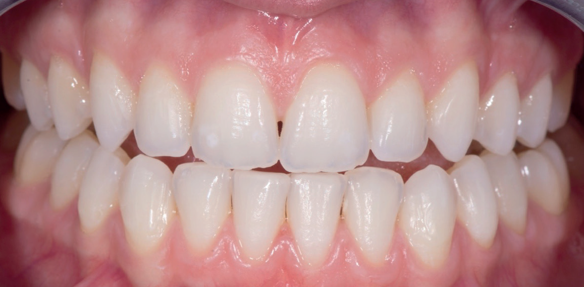 After Treatment - Teeth Whitening