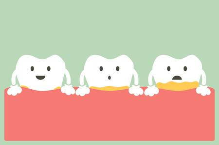 Dental plaque? What is tartar? What's the difference?