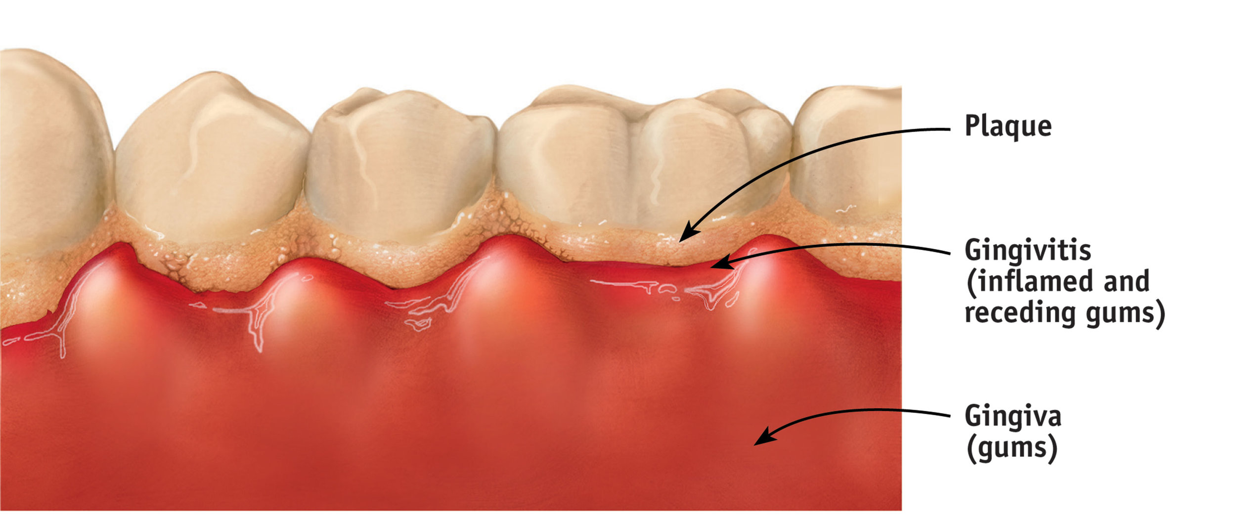 Plaque build up and gingivitis causes bleeding and swelling