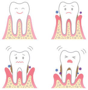 Continued plaque build up eventually leads to the formation of tartar which can cause gum disease and the permanent damage of the gums and bones surrounding a tooth