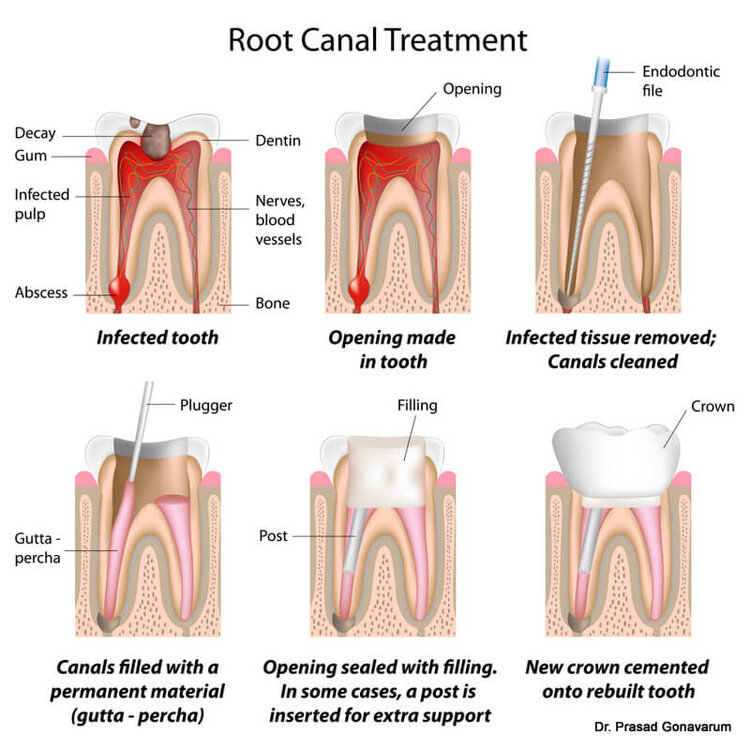 Seven Hills Dentist Blacktown Dentist Diagram of Root Canal Treatment Process