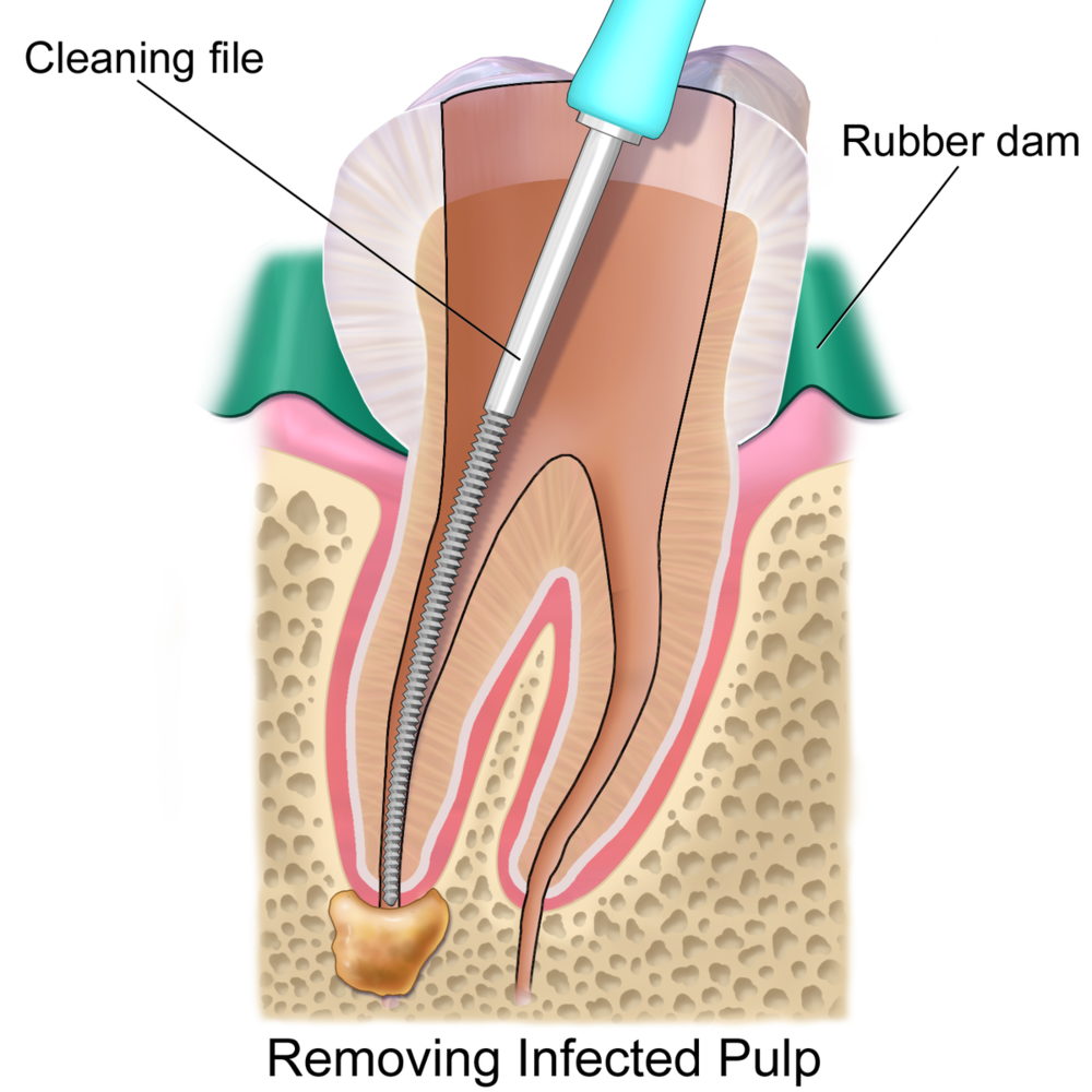 Seven Hills Dentist Blacktown Dentist Root Canal Treatment Process File
