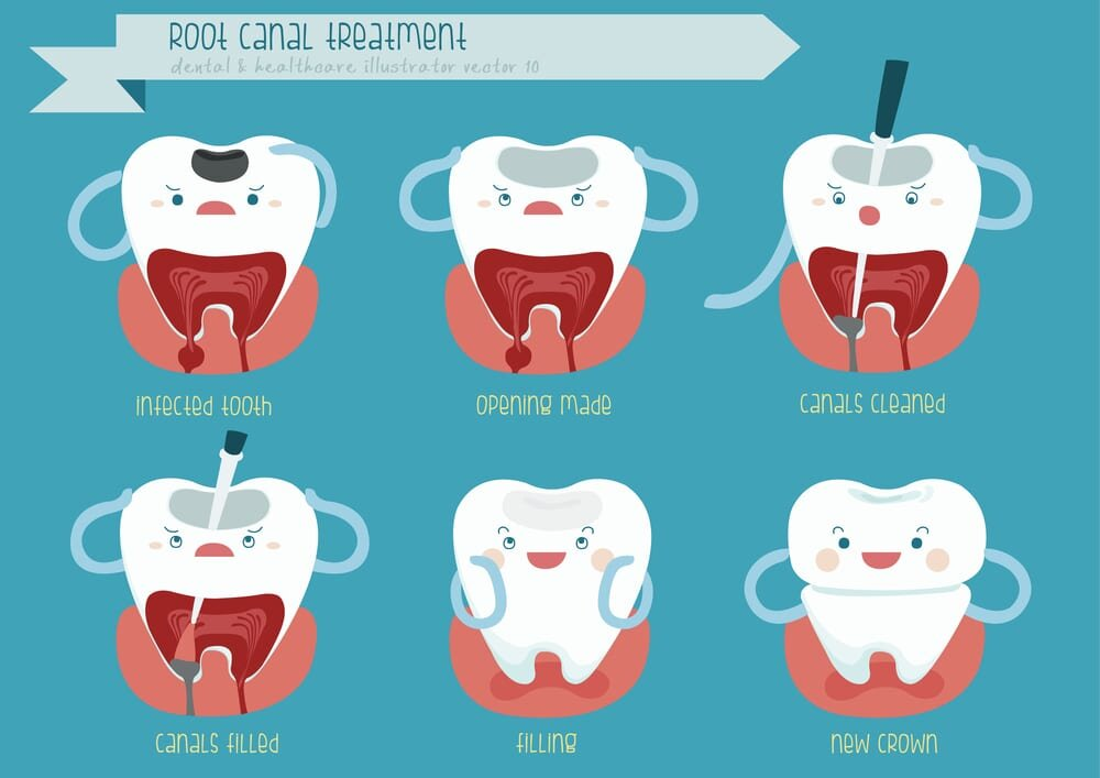 Figure 1. Seven Hills Dentist Blacktown Dentist Root Canal Treatment
