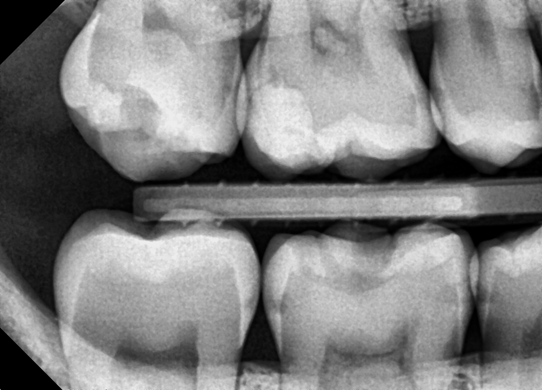 Early signs of tooth decay between teeth