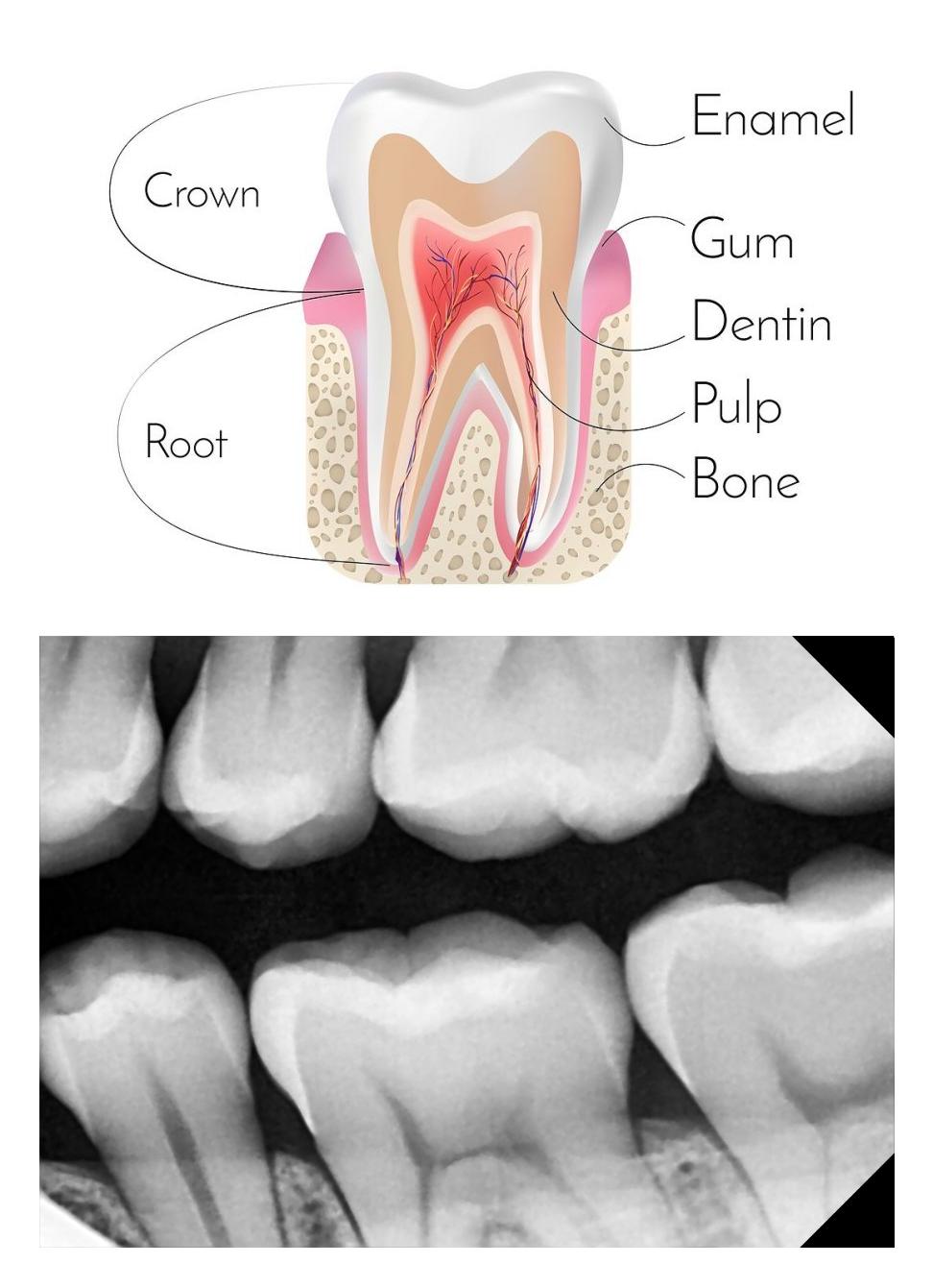 Blacktown Dentist Seven Hills Dentist Dental X-ray Anatomy.png