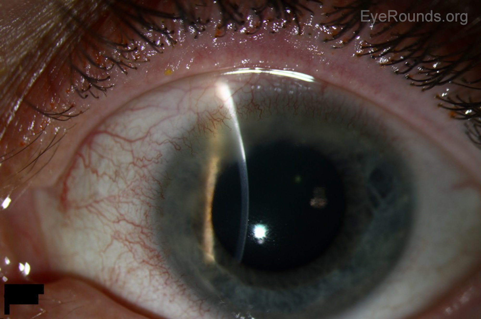 Small, peripheral corneal ulcers can be treated initially with second generation FQs. Make sure to have the patient follow up with an eye doctor.