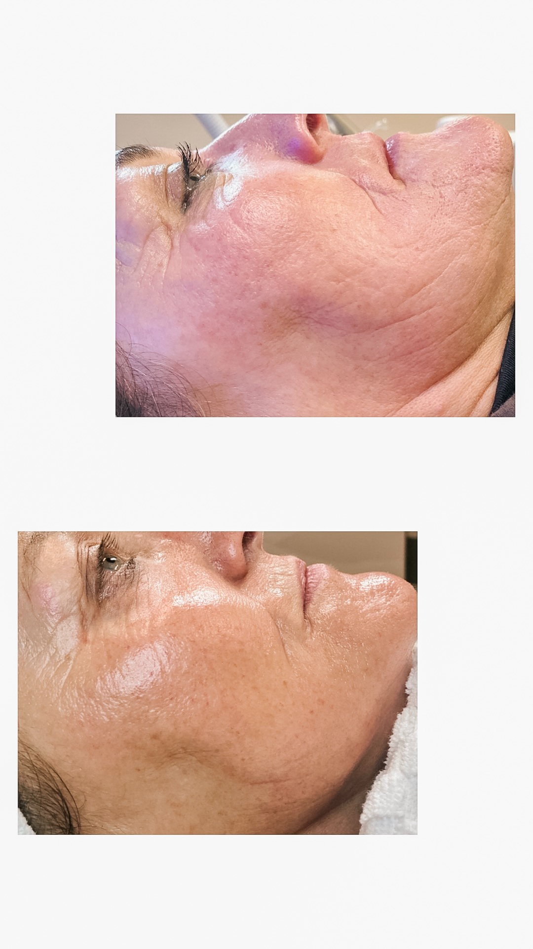 Microneedling - Collagen Induction Therapy  Before and After 4 sessions of micro needling with Connective Tissue Growth Factor serums