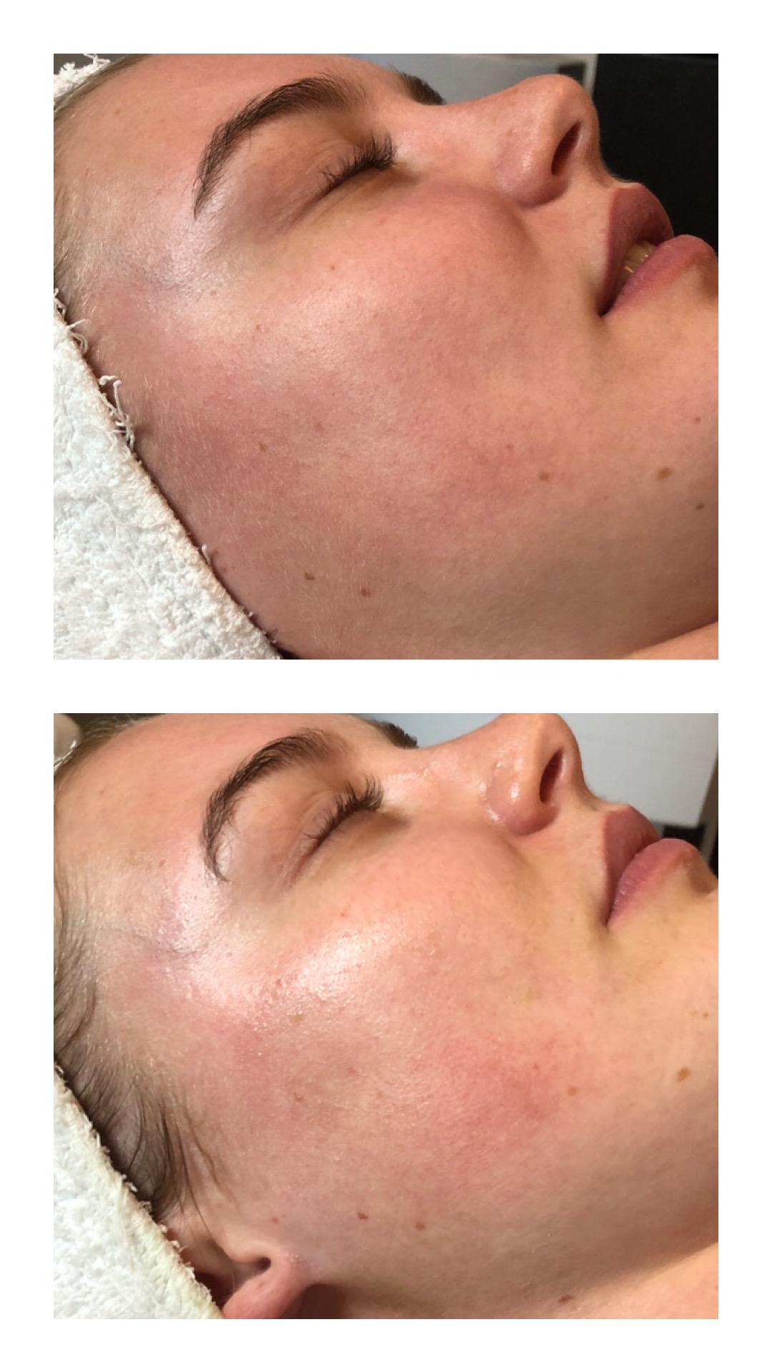 Before & After SilkPeel / DermalInfusion Treatment