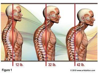 Posture-Pictureneck.jpg
