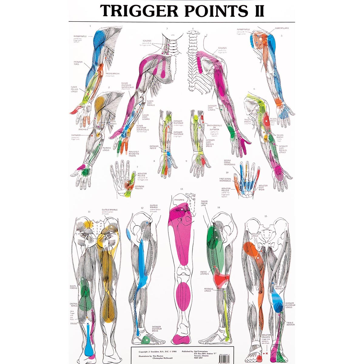 trigger-points-chart-massage-therapy.jpg