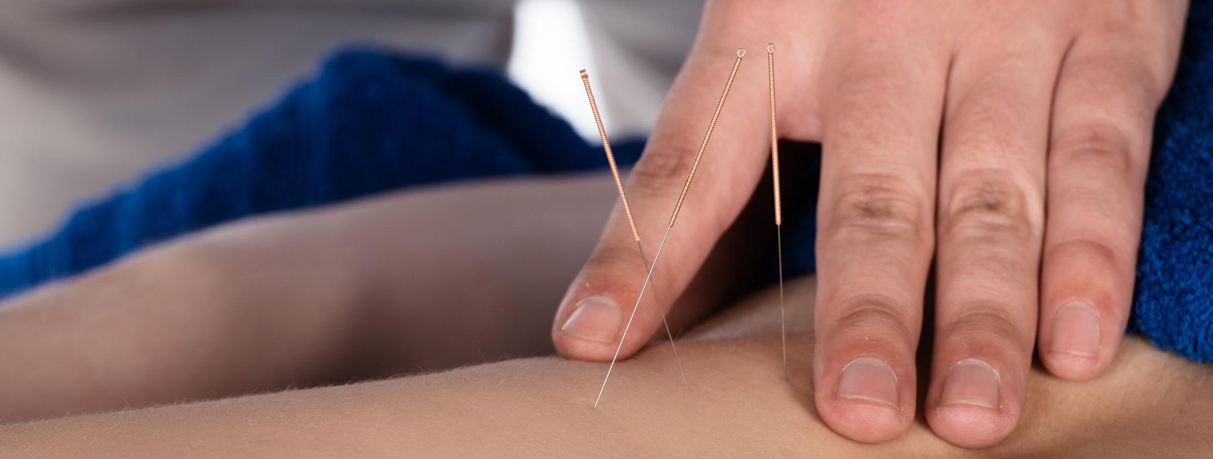Toronto Acupuncture.jpg