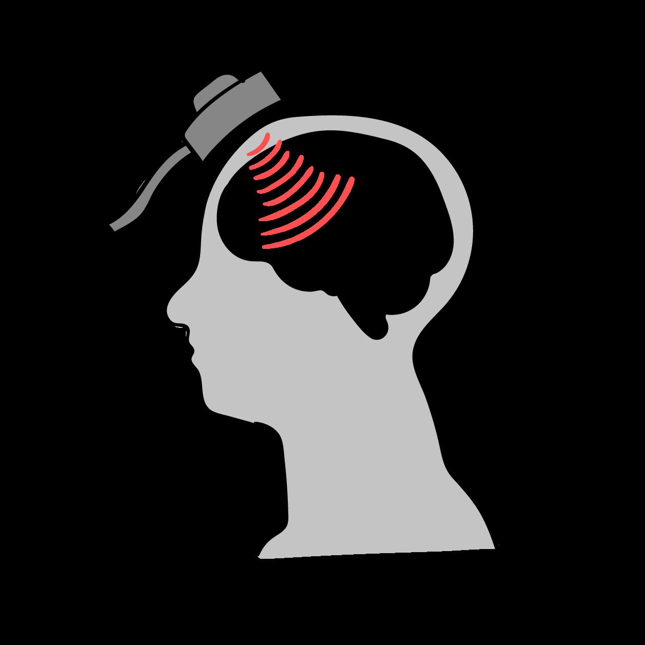 Neurostimulation - allgemein