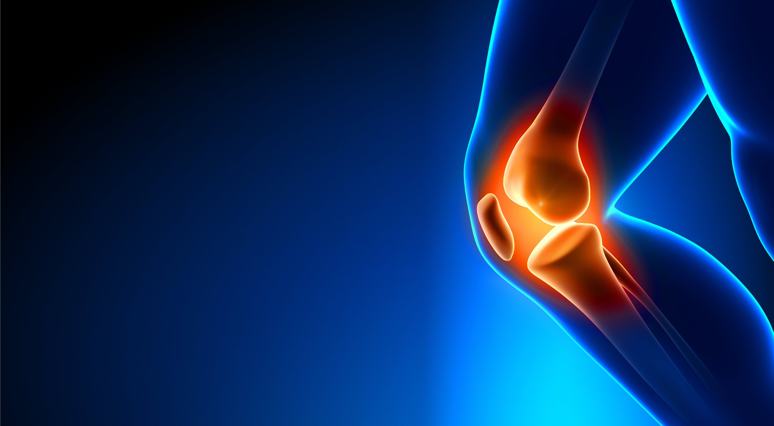 Knee Injuries   Minimally invasive knee replacement | ACL reconstruction | Cartilage Transplant | Meniscal repair | Ligament Reconstruction | Patellofemoral Syndrome | MACI procedure   SCHEDULE AN APPOINTMENT