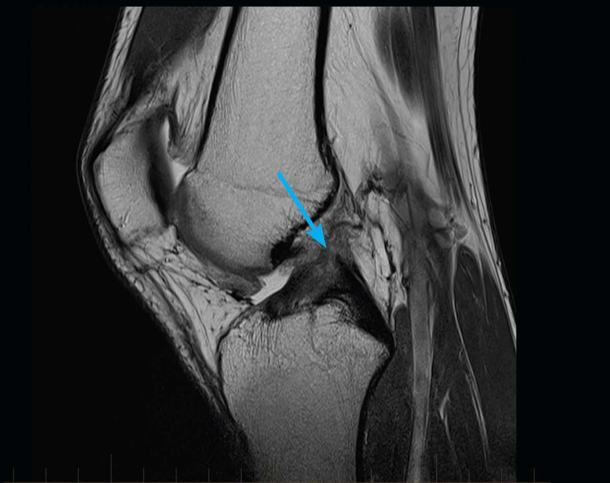 MRI of a patient's knee showing a complete rupture of the Anterior Cruciate Ligament (ACL).
