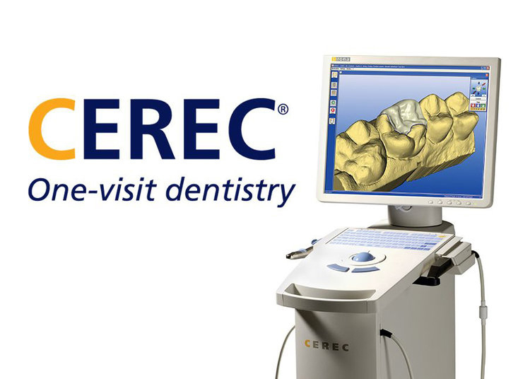 CEREC_union_city_dentist.jpg