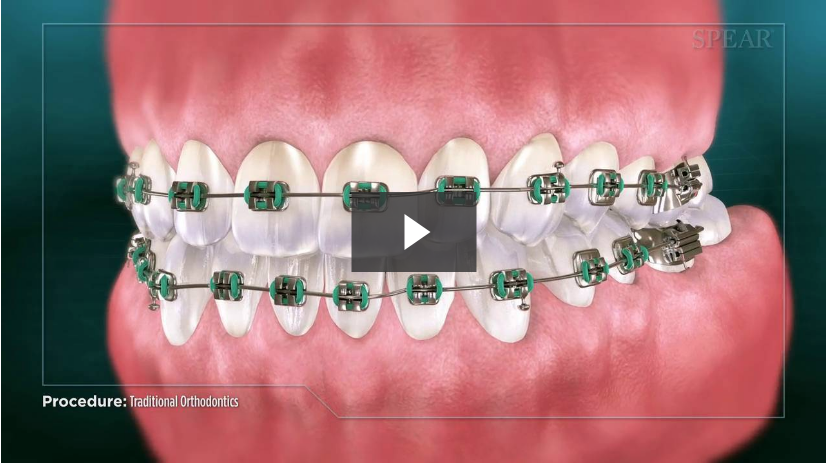 Traditional Orthodontic Treatment Video