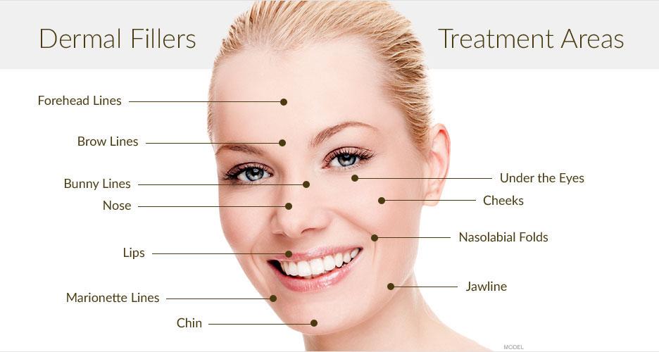 dermal-filler-treatment-areas-wellington-.jpg