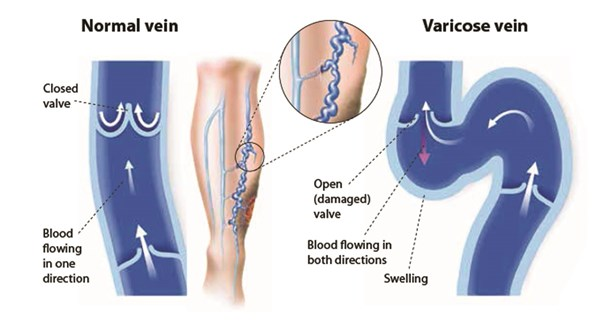 vein ther