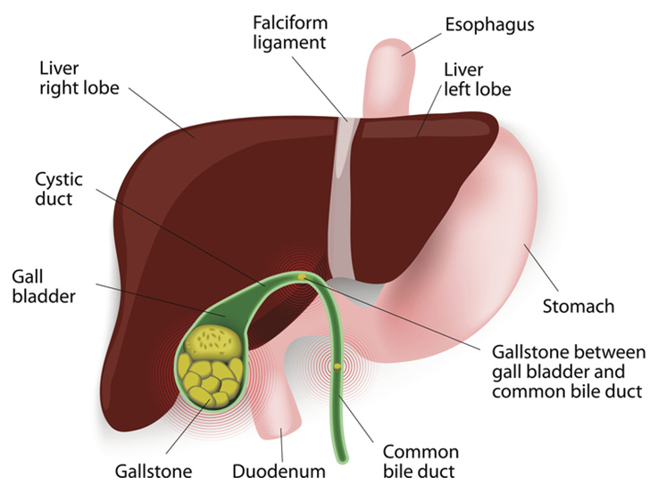 Gallbladder with Gallstones