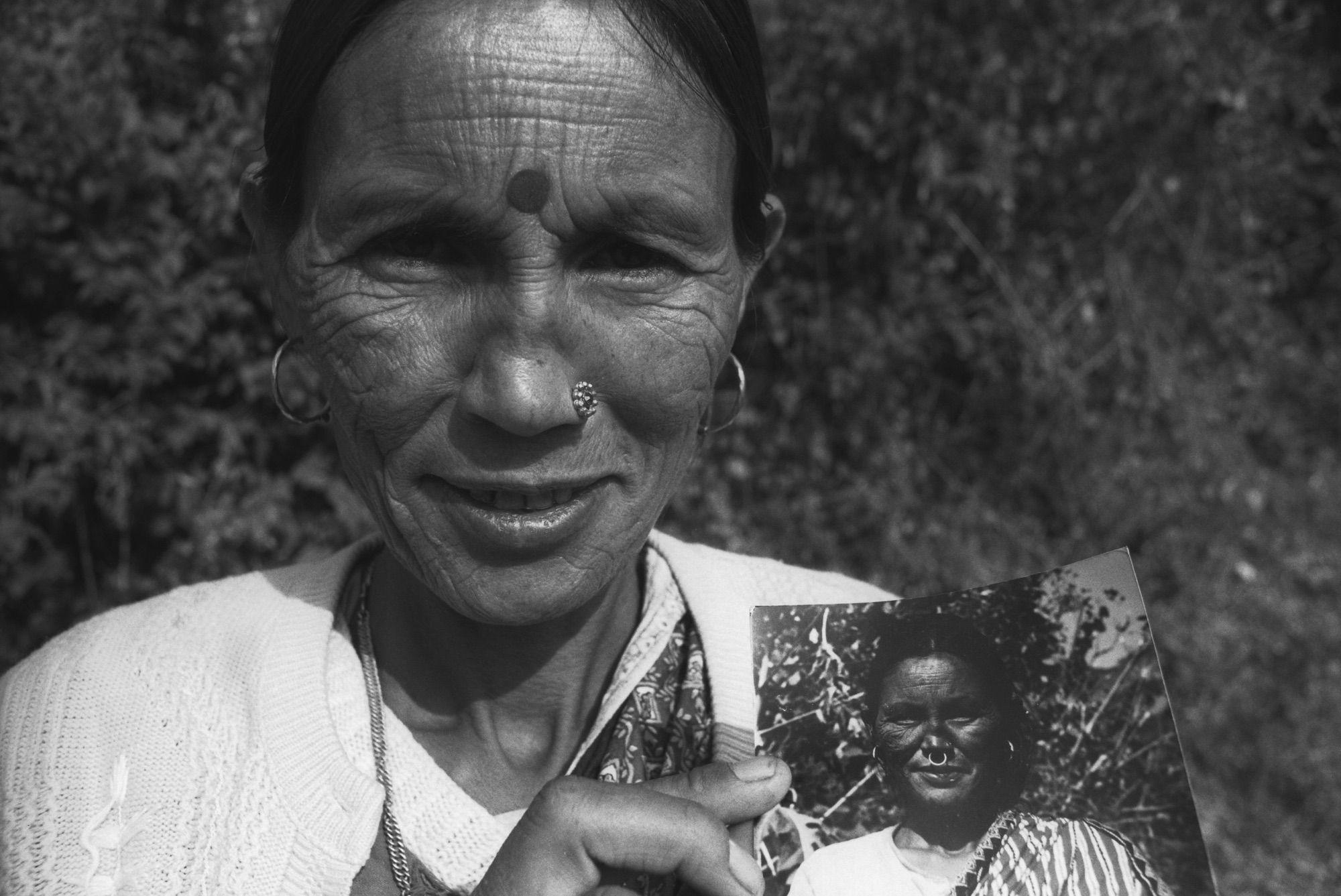 28 (k)Ehem Leprapat mit Photo vor plastischer Operation, Tara Parbat, Indien Dez 01.jpg