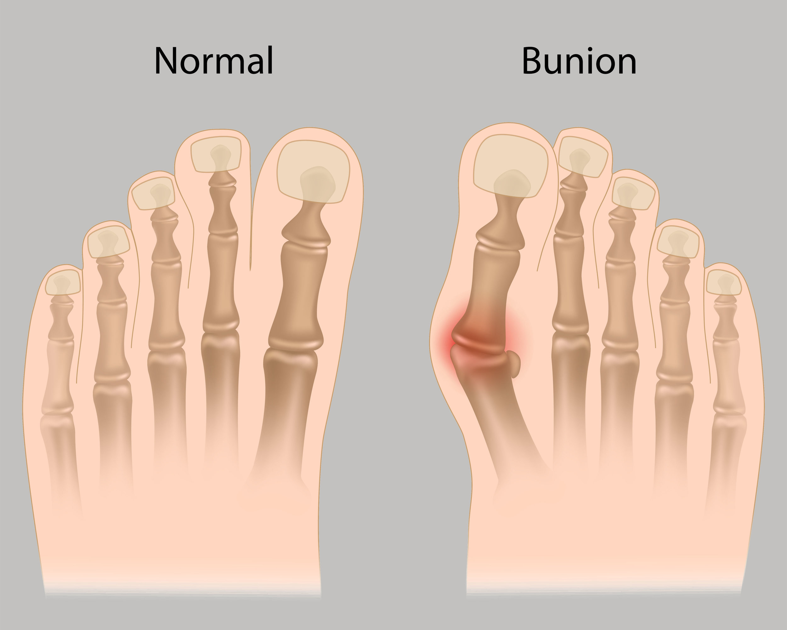 bunion surgery by bunion surgeon Dr. Boris Abramov serving pikesville, maryland