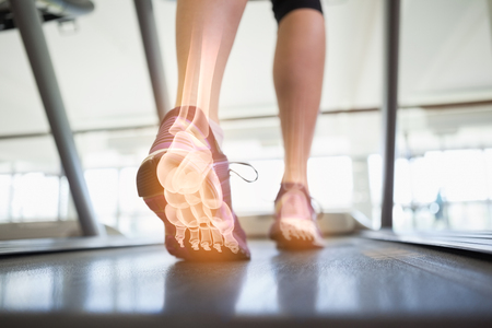 44790491_S_treadmill_bones_feet_sneakers_.jpg