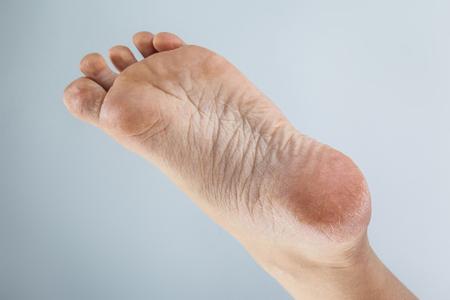 89359023_S_corns_calluses_foot_heel_toes_dry_skin_cracked.jpg