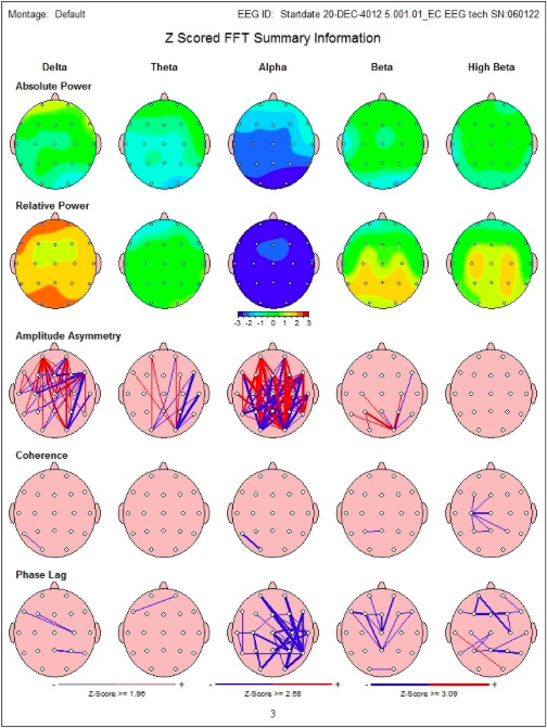 The top row reflects the absolute power in frequencies at each site. For example, in the upper middle there is an area of blue, reflecting decreased activity in the Alpha brain frequencies. This is associated with problems in multitasking and day to day functioning. In the second row there is an area of orange in the Delta frequencies, which reflects problems with sleep and issues with depression and chronic pain. The middle row is not routinely utilized in this clinic. The fourth and fifth rows show a bunch of lines, each indicating the connections not working together. This is associated with reduced cognitive efficiency, commonly seen post-trauma. There is no other instrument on the market that can empirically do this.