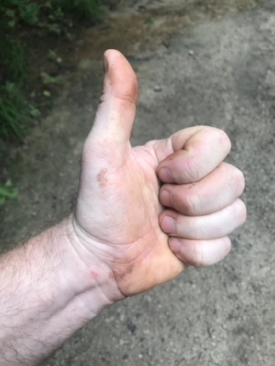 thumbs up after rolling twisting ankle