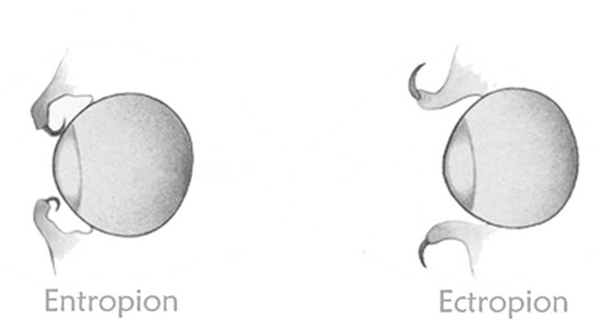 Entropion - eyelids that curve inwards.  Ectropion - eyelids that roll outwards.