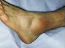 AnkleSprain.jpg