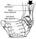 AnkleAnatomy.jpg