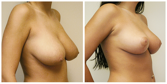Breast Red-Pat I-Side.jpg