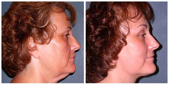 Facelift Patient II-Full-Side.jpg