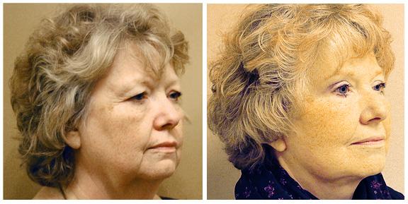 Facelift Patient III-Full-Side.jpg
