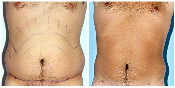 Liposuction BA-Full-III.jpg