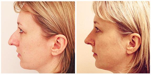 Nose BA-Full-III-Side.jpg