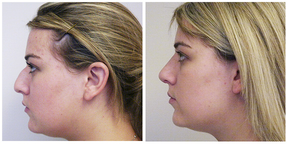 Nose BA-Full-II-Side.jpg