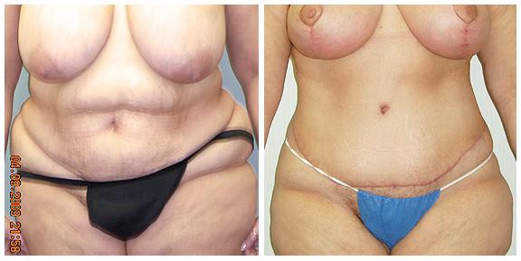 Tummy Tuck-Pat III-Ft.jpg