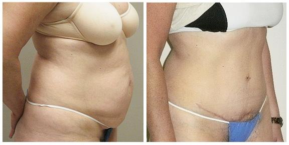 Tummy Tuck BA-Full-I-Side.jpg