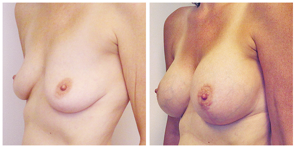 Mastopexy-Patient V-lateral.jpg
