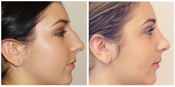Nose-Patient IV-Sd.jpg