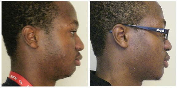 Otoplasty-Patient II-Sd.jpg