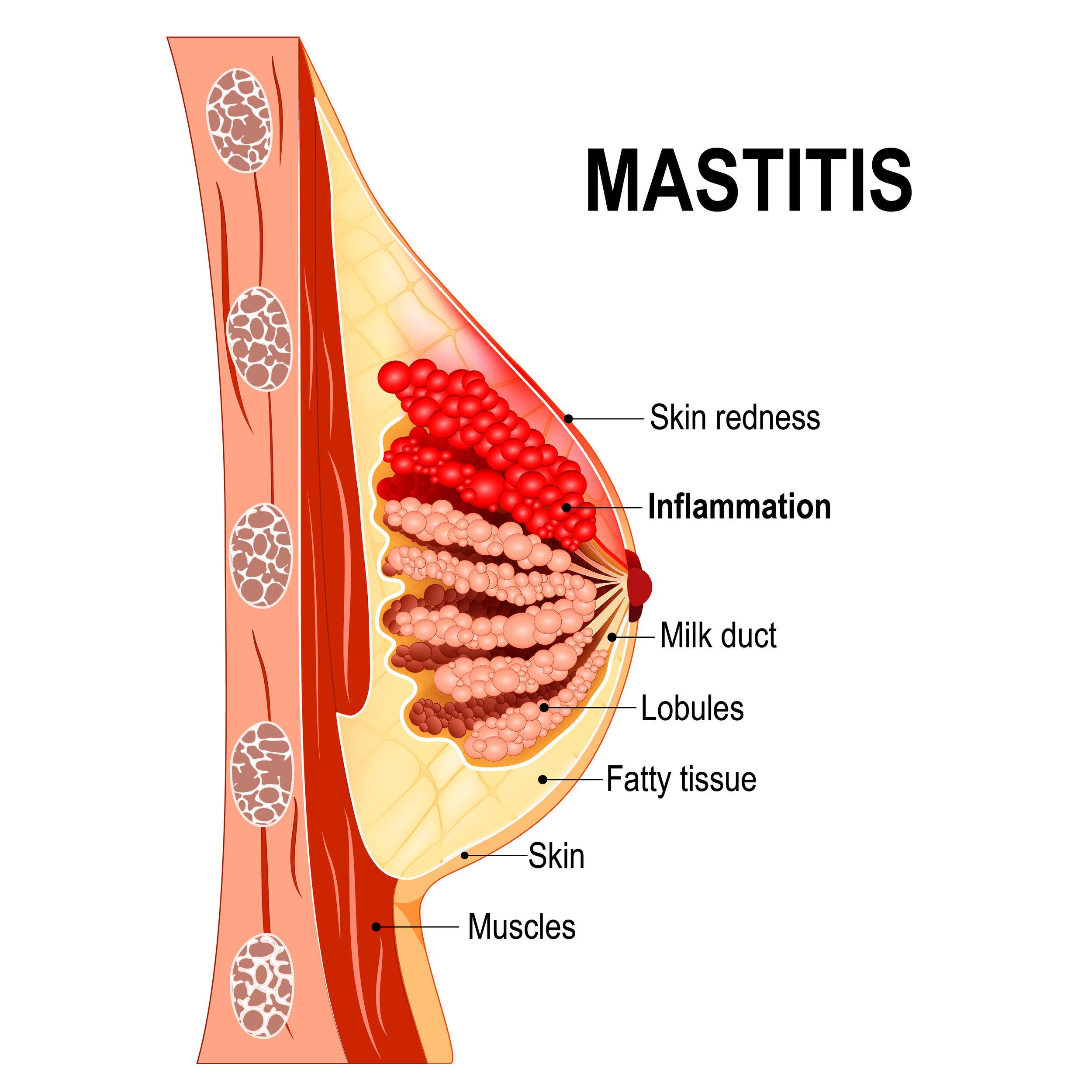 Mastitis.jpg