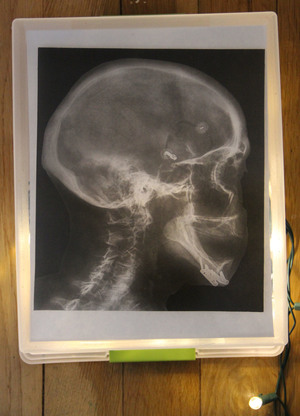 science+club+broken+bones+xrays.jpg