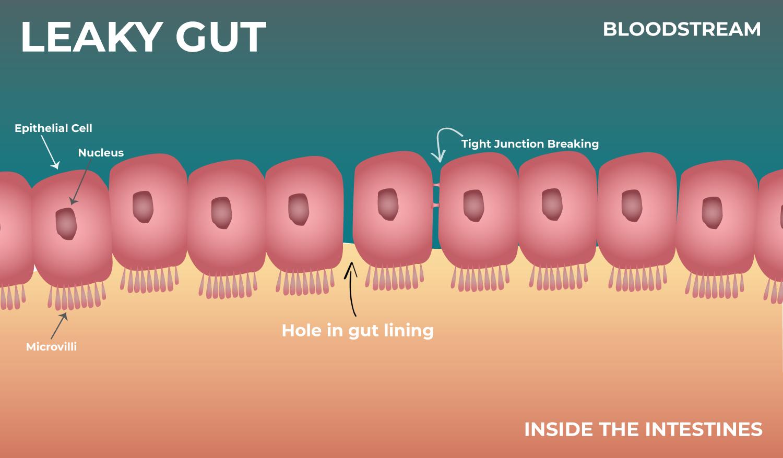 My-leaky-gut-illustration.jpg