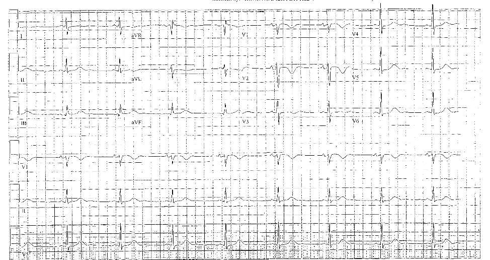 Patient electrocardiogram five days after event and at baseline mental status