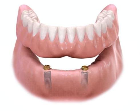 Dentures & Partials — Precision Dental MKE