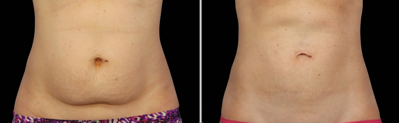 cryolipolysis-coolsculpt-belly-1.png